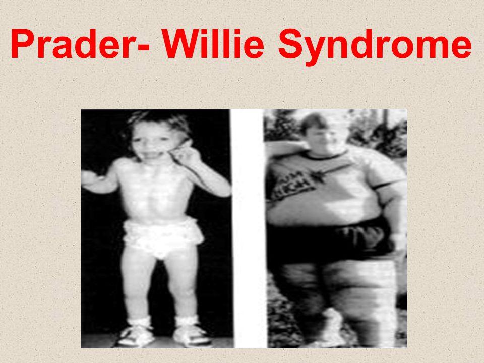 Prader- Willie Syndrome