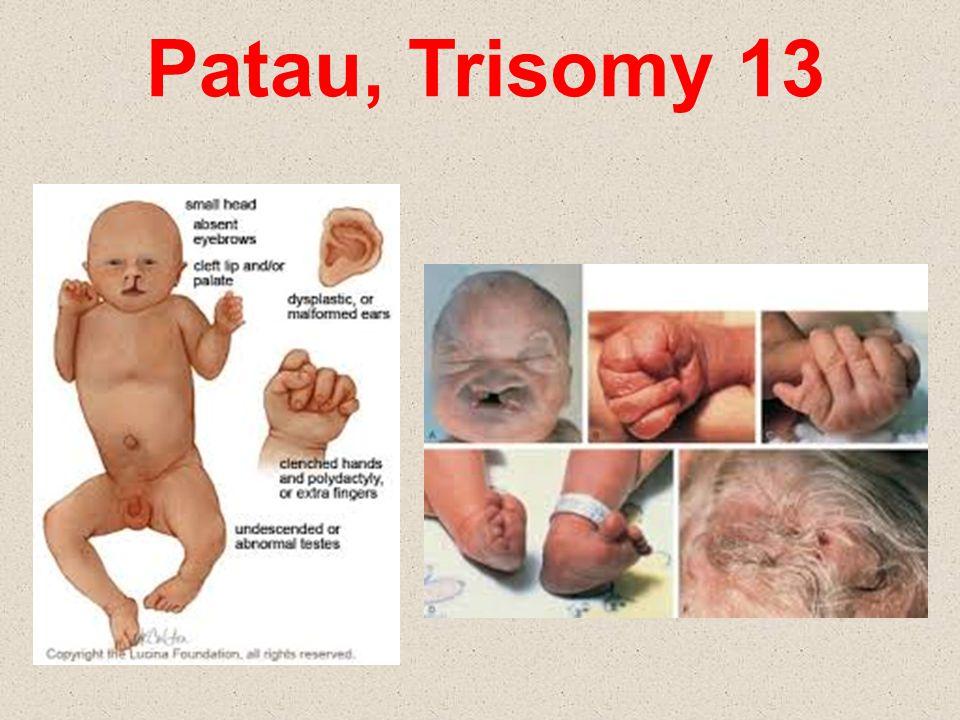 Patau, Trisomy 13