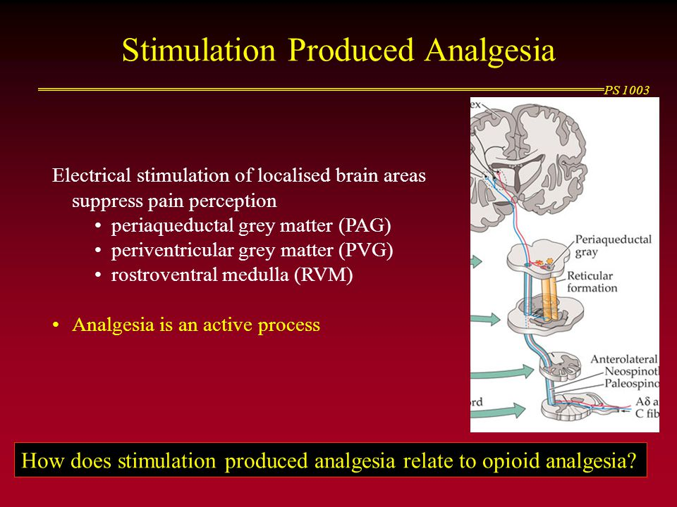 Stimulation Produced Analgesia