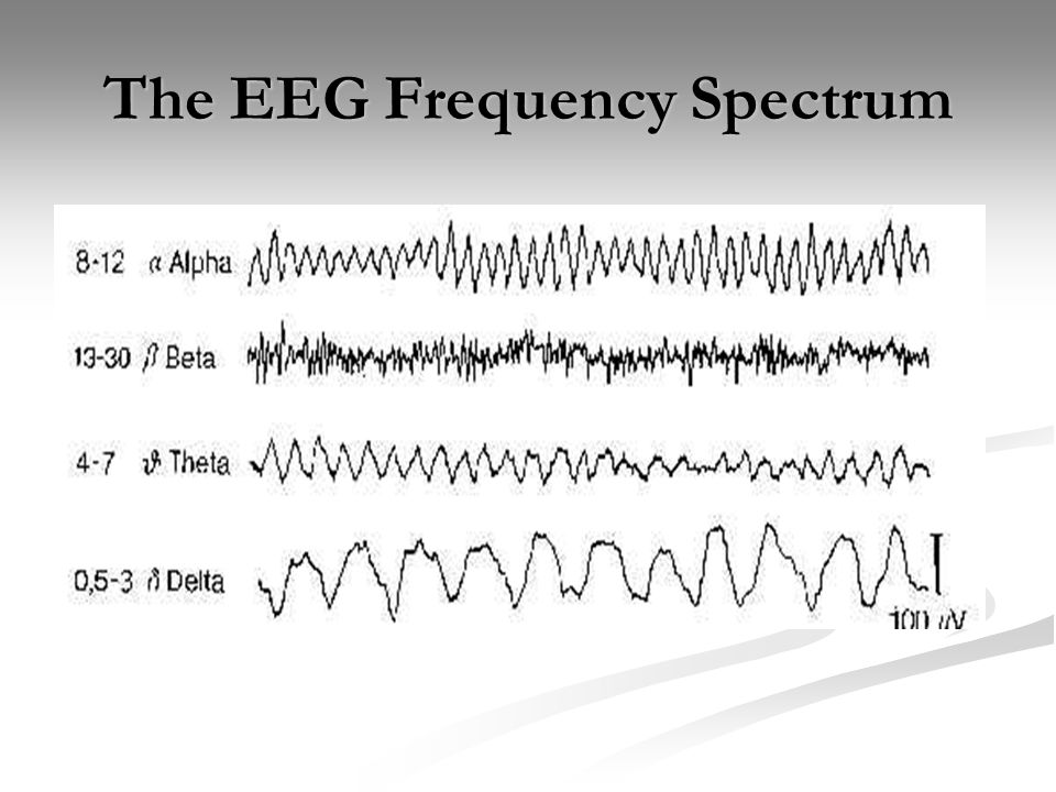 The EEG Frequency Spectrum