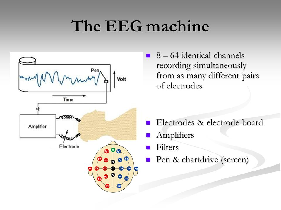 The EEG machine 8 – 64 identical channels recording simultaneously from as many different pairs of electrodes.
