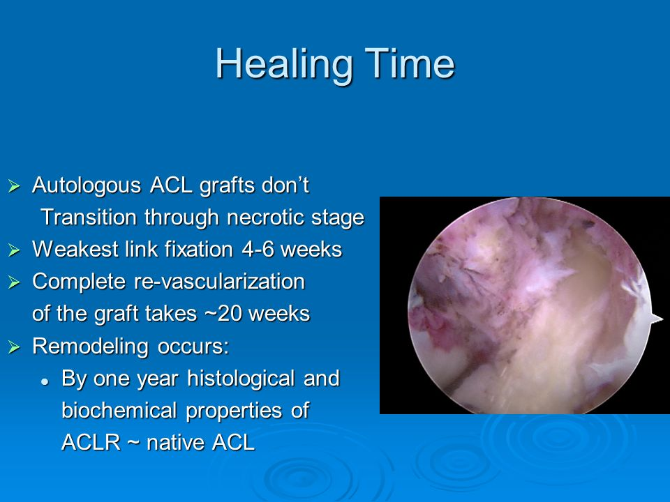 Healing Time Autologous ACL grafts don't