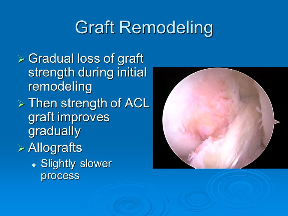 Graft Remodeling Gradual loss of graft strength during initial remodeling. Then strength of ACL graft improves gradually.
