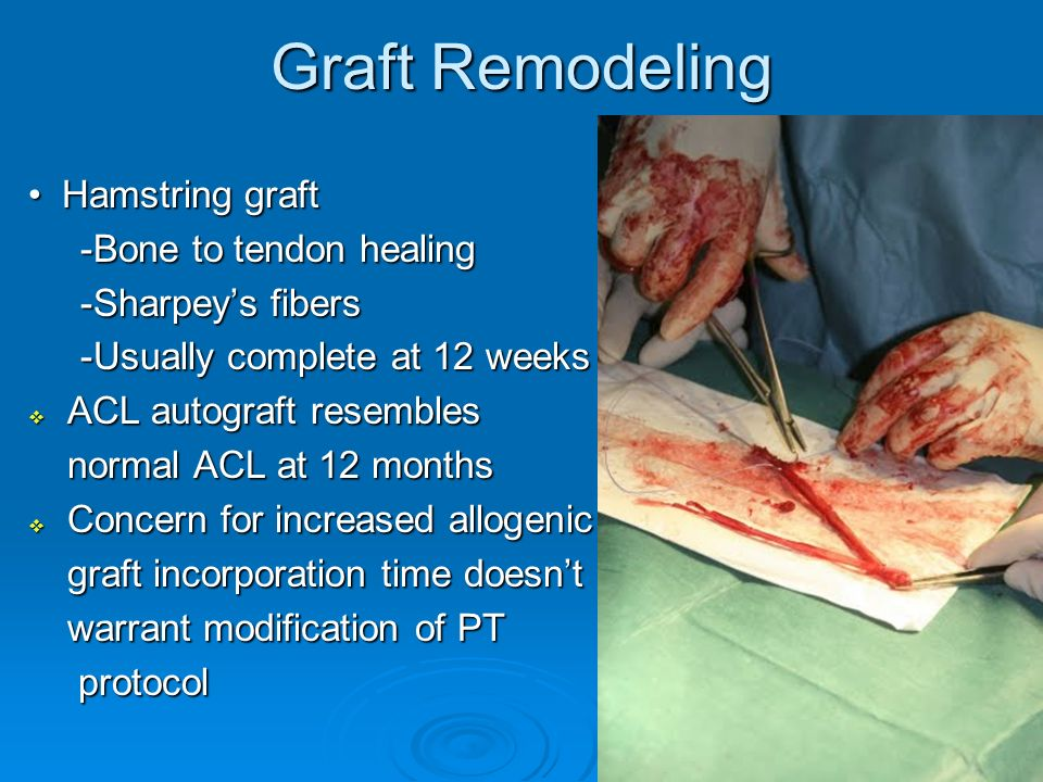 Graft Remodeling • Hamstring graft -Bone to tendon healing