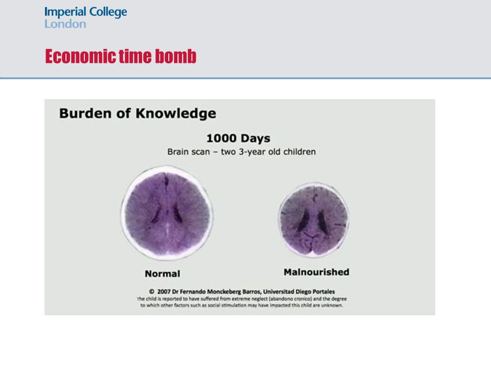 Economic time bomb Long term effects on health, physical and cognitive development.
