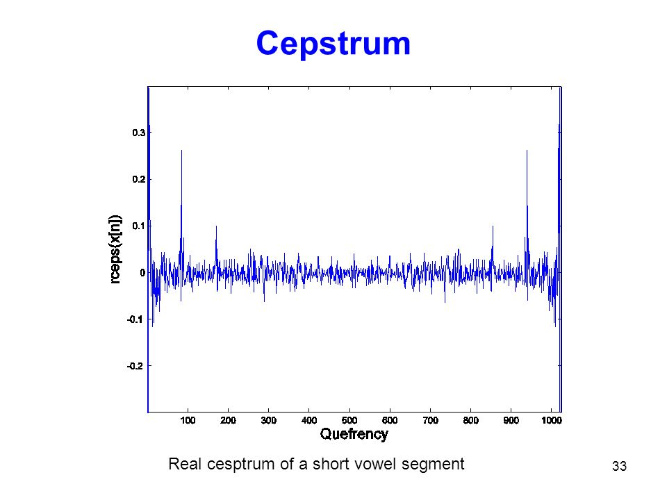 Cepstrum Real cesptrum of a short vowel segment