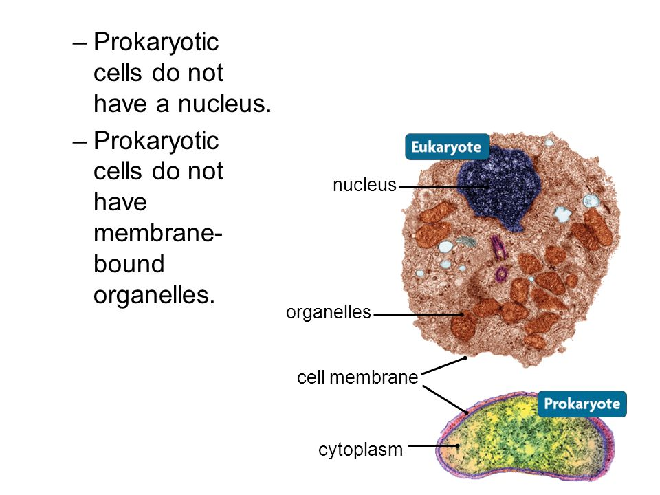 Prokaryotic cells do not have a nucleus.