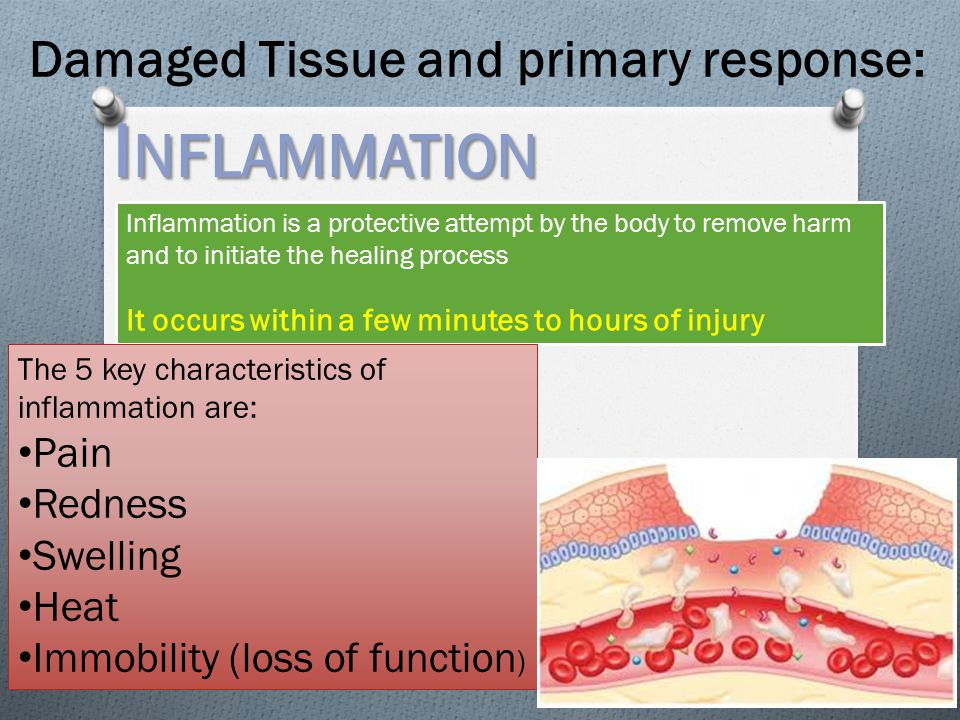 Inflammation Damaged Tissue and primary response: Pain Redness