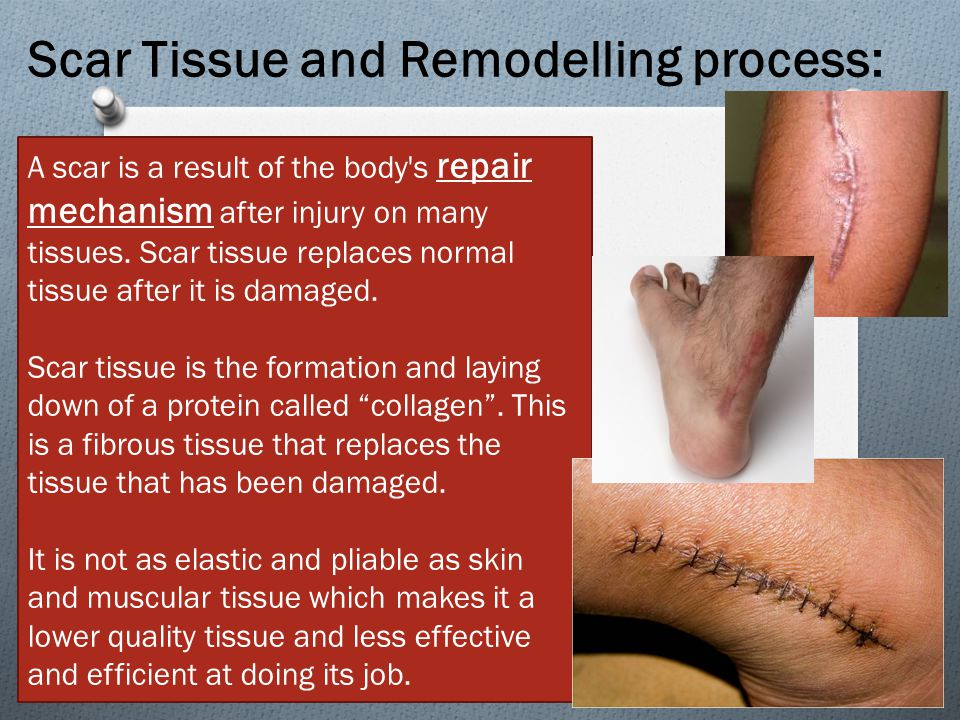Scar Tissue and Remodelling process: