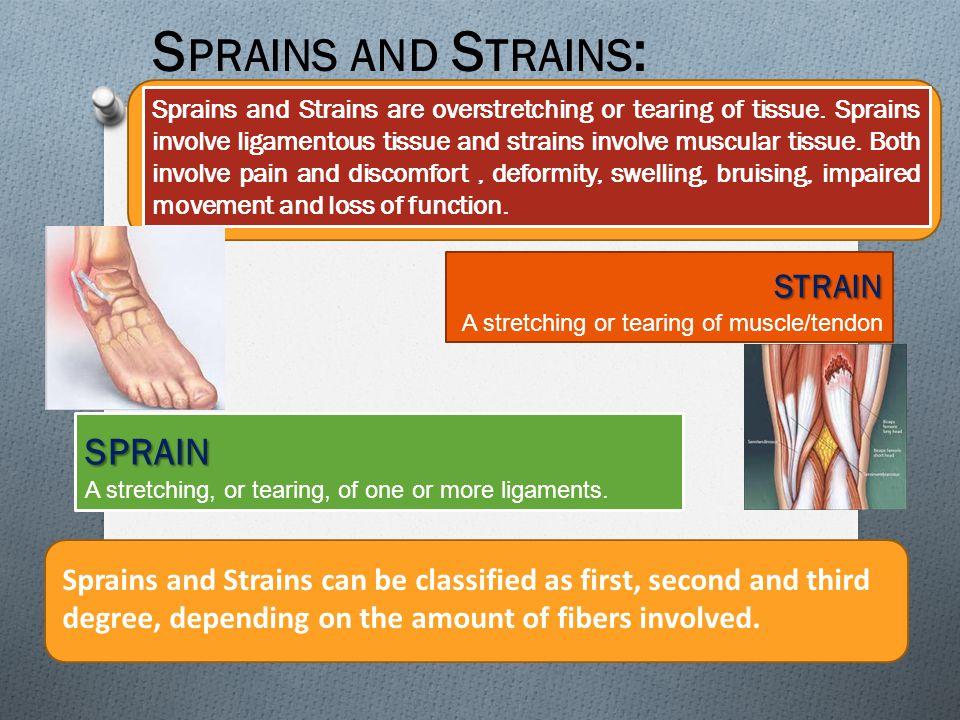 Sprains and Strains: sprain strain