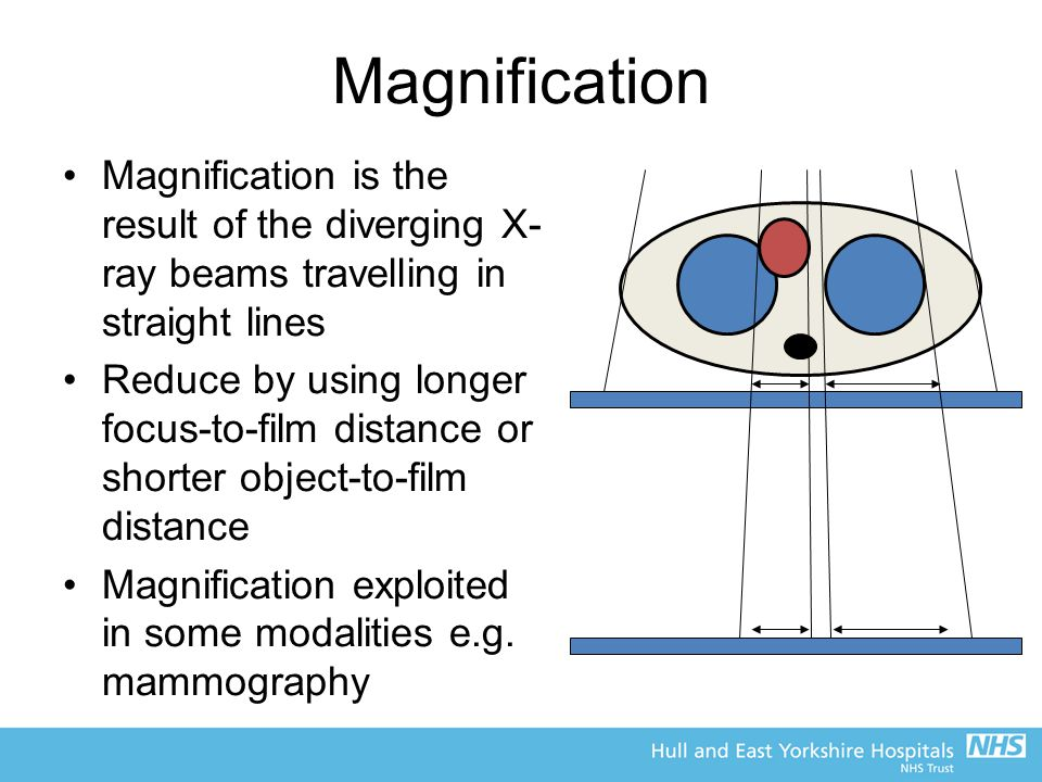 Magnification Magnification is the result of the diverging X-ray beams travelling in straight lines.