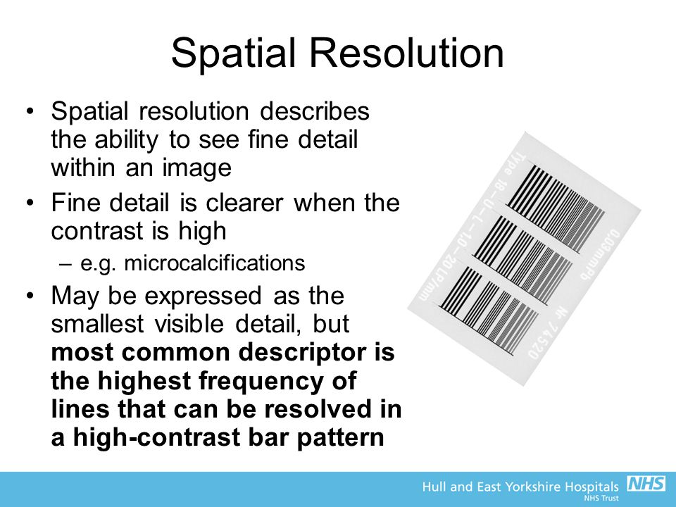 Spatial Resolution Spatial resolution describes the ability to see fine detail within an image. Fine detail is clearer when the contrast is high.