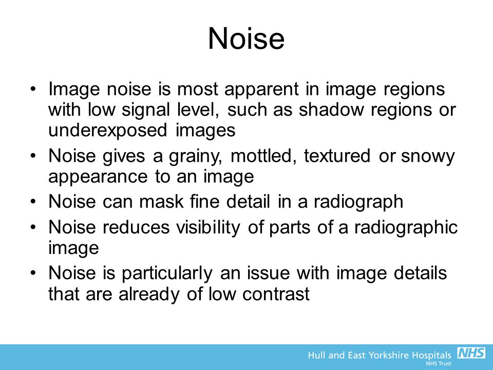 Noise Image noise is most apparent in image regions with low signal level, such as shadow regions or underexposed images.