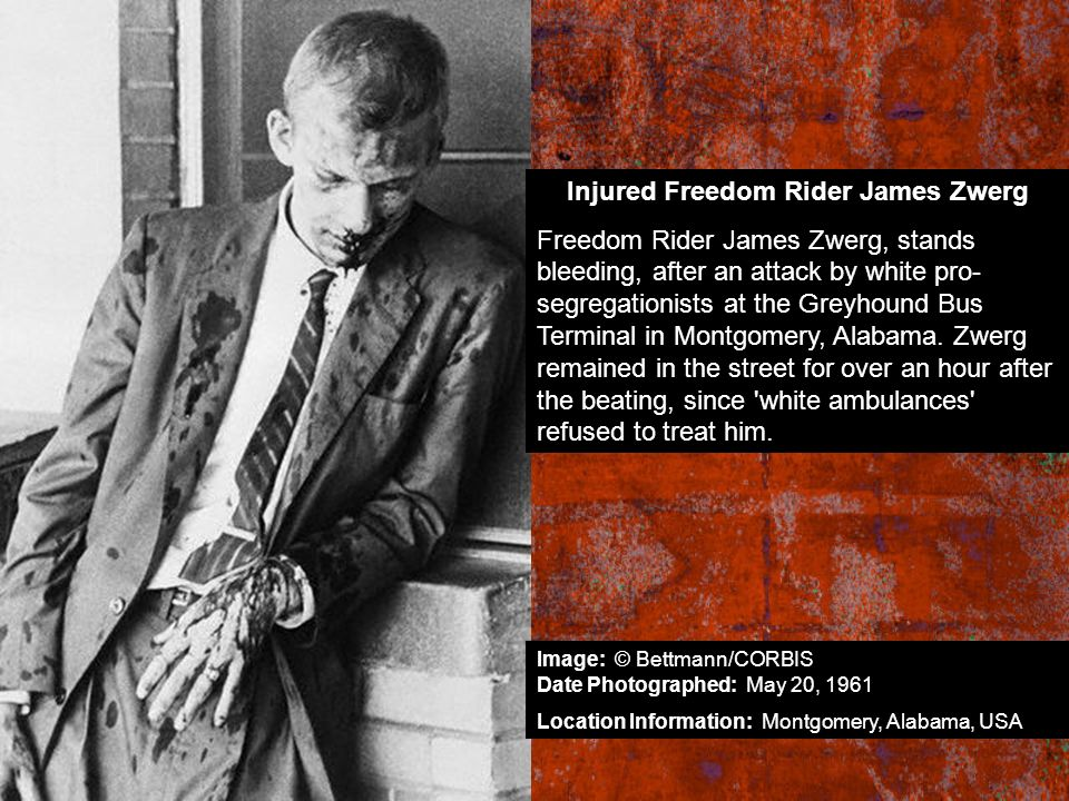 Injured Freedom Rider James Zwerg
