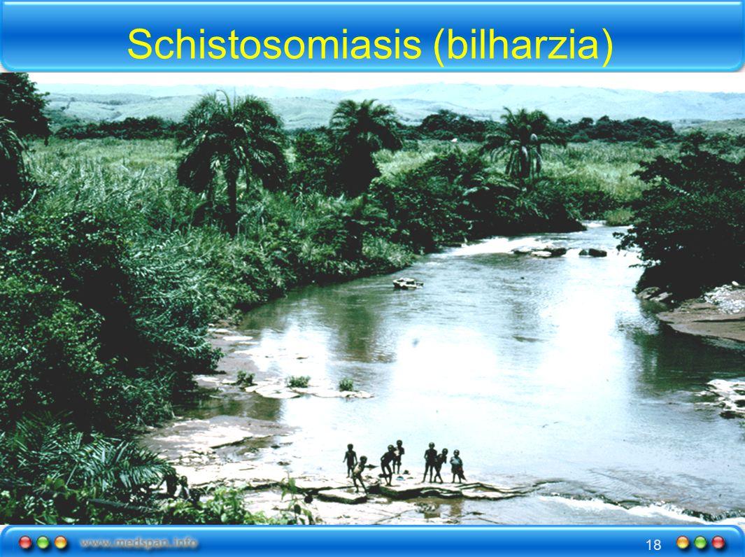 Schistosomiasis (bilharzia)