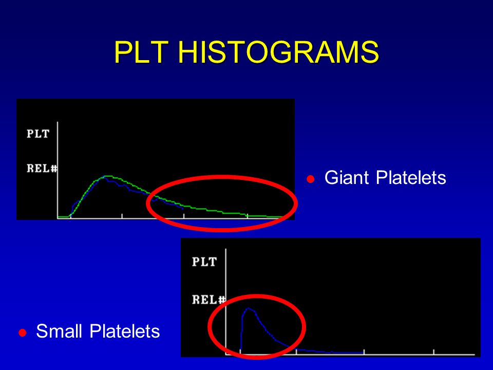 PLT HISTOGRAMS Giant Platelets Small Platelets
