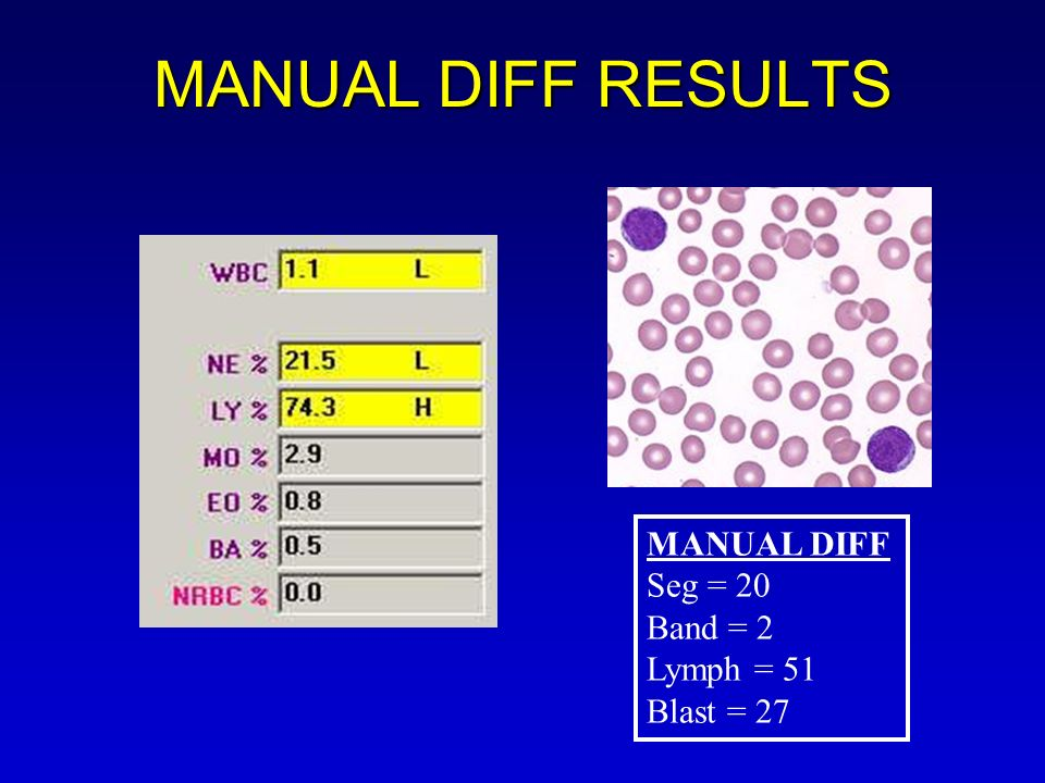 MANUAL DIFF RESULTS MANUAL DIFF Seg = 20 Band = 2 Lymph = 51