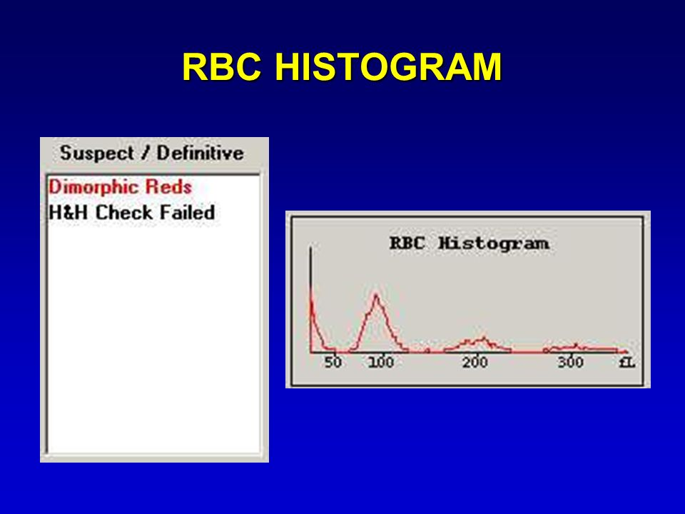 RBC HISTOGRAM Suspect flags show Dimorphic RBCs with an H&H Check Fail but look at the RBC Histogram….does that look normal