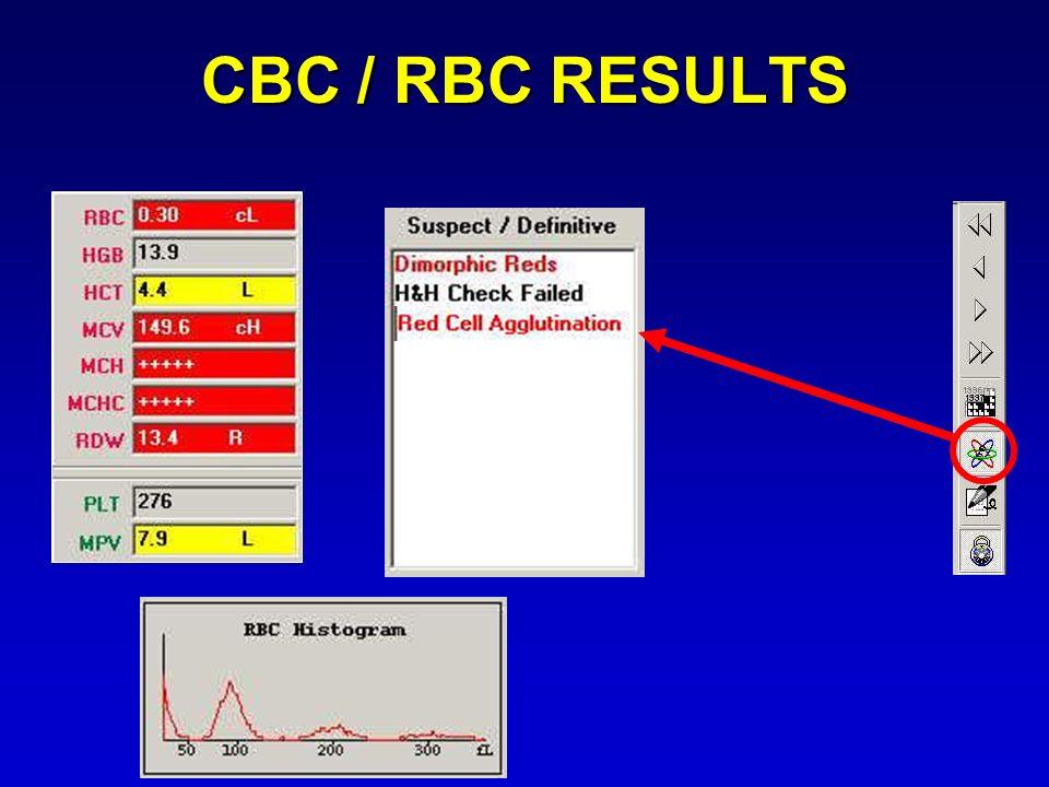CBC / RBC RESULTS