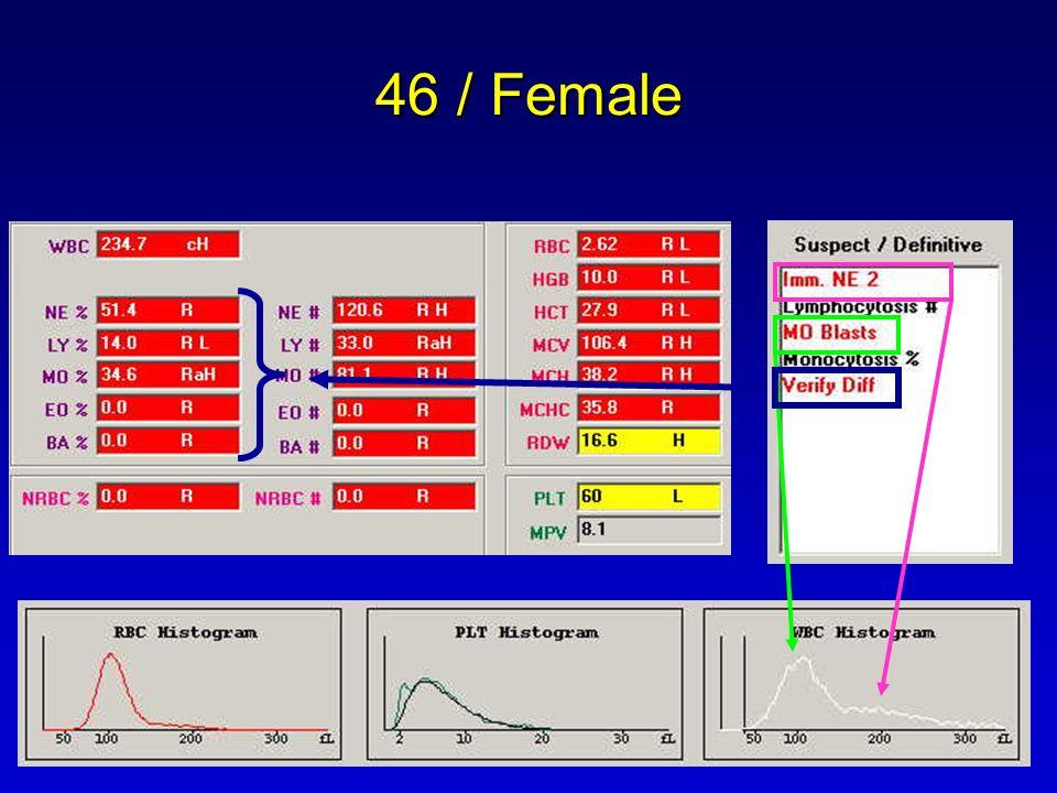 46 / Female