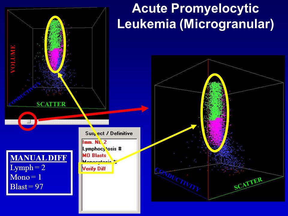 Acute Promyelocytic Leukemia (Microgranular)