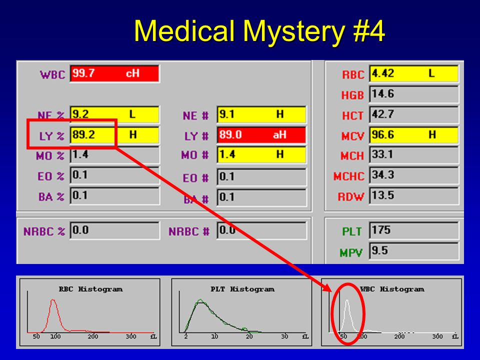 Medical Mystery #4