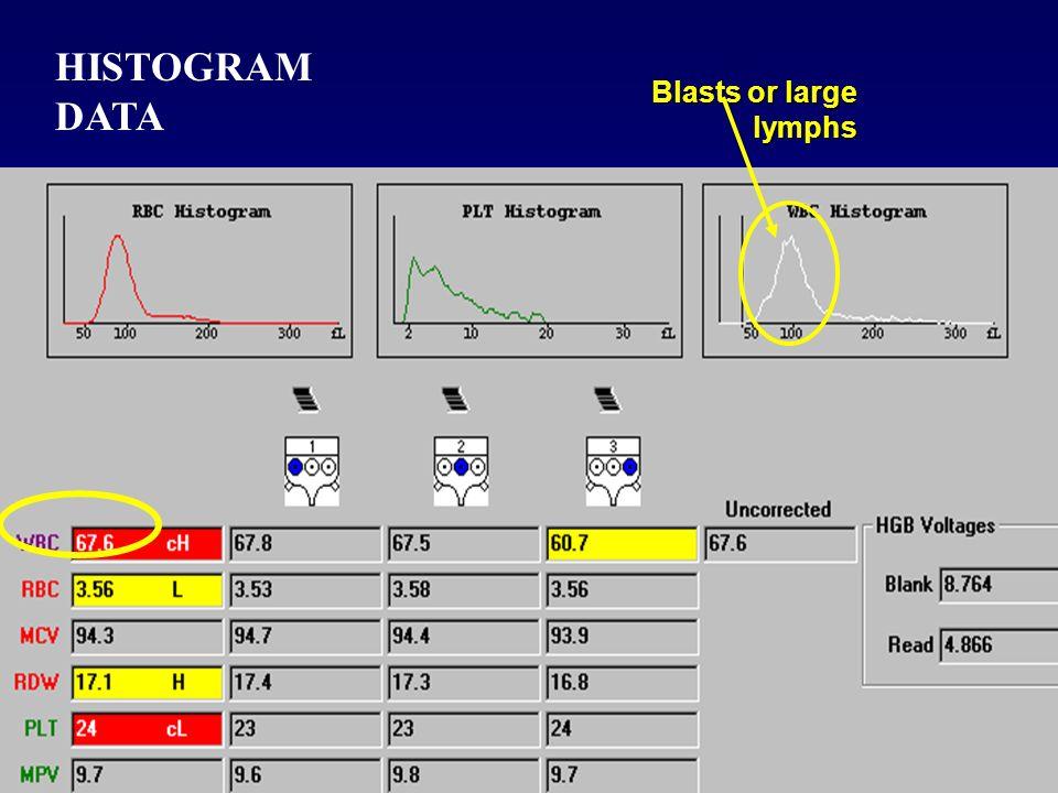 HISTOGRAM DATA Blasts or large lymphs