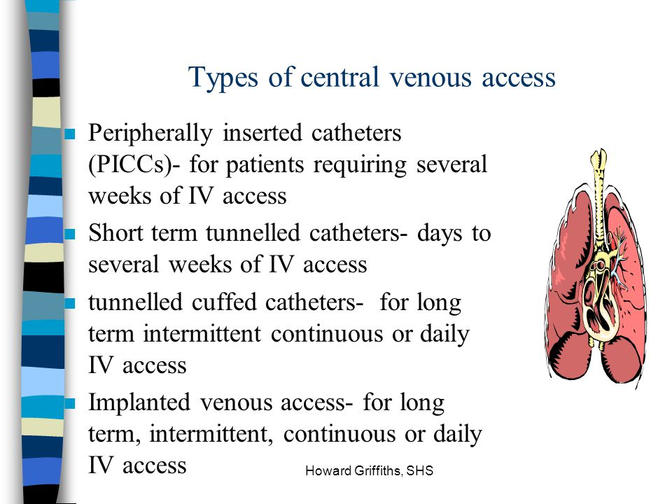 Types of central venous access