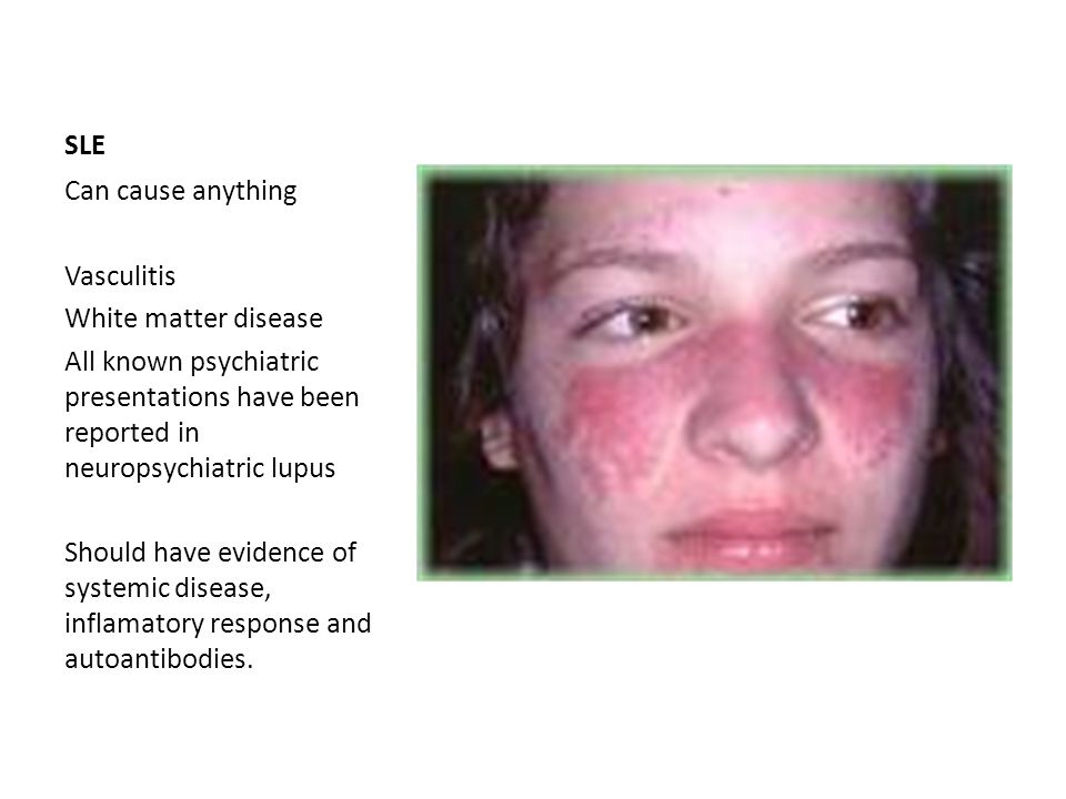 SLE Can cause anything. Vasculitis. White matter disease. All known psychiatric presentations have been reported in neuropsychiatric lupus.