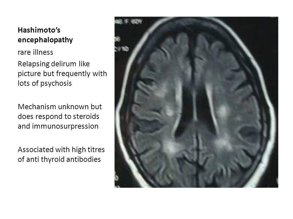 Hashimoto's encephalopathy