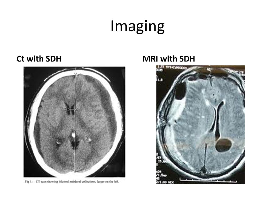 Imaging Ct with SDH MRI with SDH