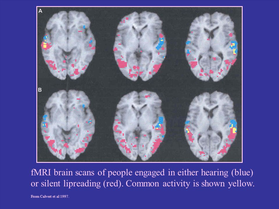 fMRI brain scans of people engaged in either hearing (blue)