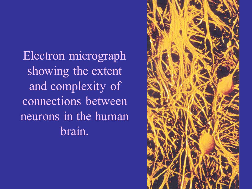 Electron micrograph showing the extent. and complexity of. connections between. neurons in the human.