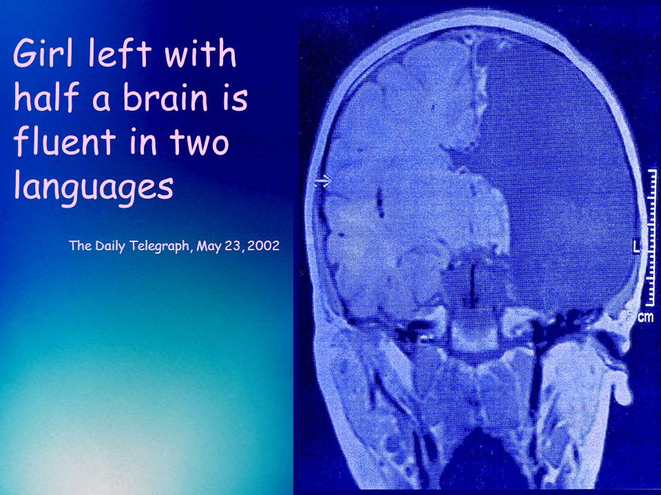Girl left with half a brain is fluent in two languages