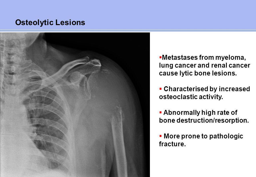 Osteoblastic Lesions Metastases from prostate cancer cause blastic bone lesions.