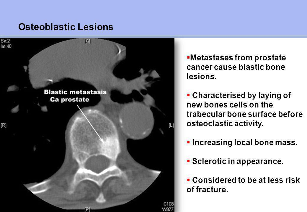 Mixed - Osteolytic And Osteoblastic Lesions