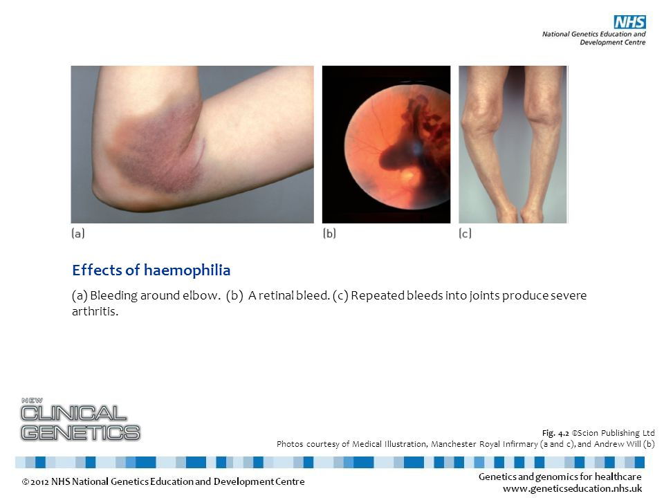 Effects of haemophilia