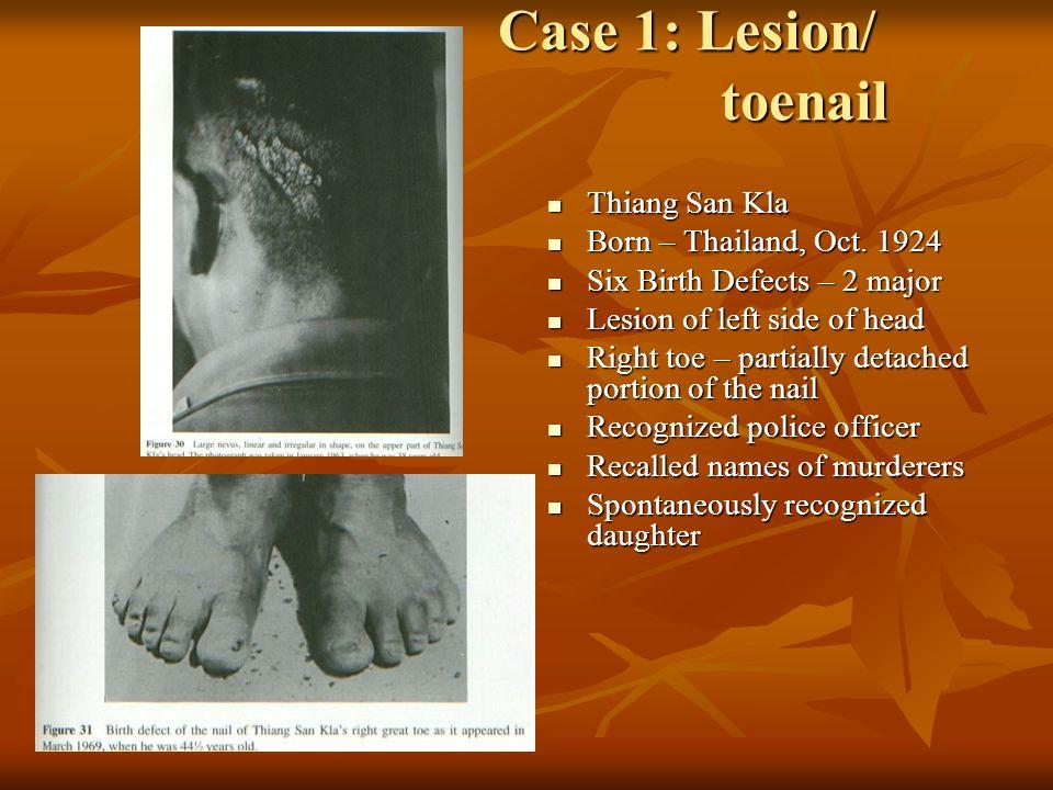 Case 1: Lesion/ toenail Thiang San Kla Born – Thailand, Oct. 1924