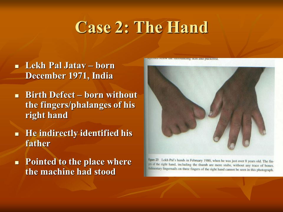 Case 2: The Hand Lekh Pal Jatav – born December 1971, India