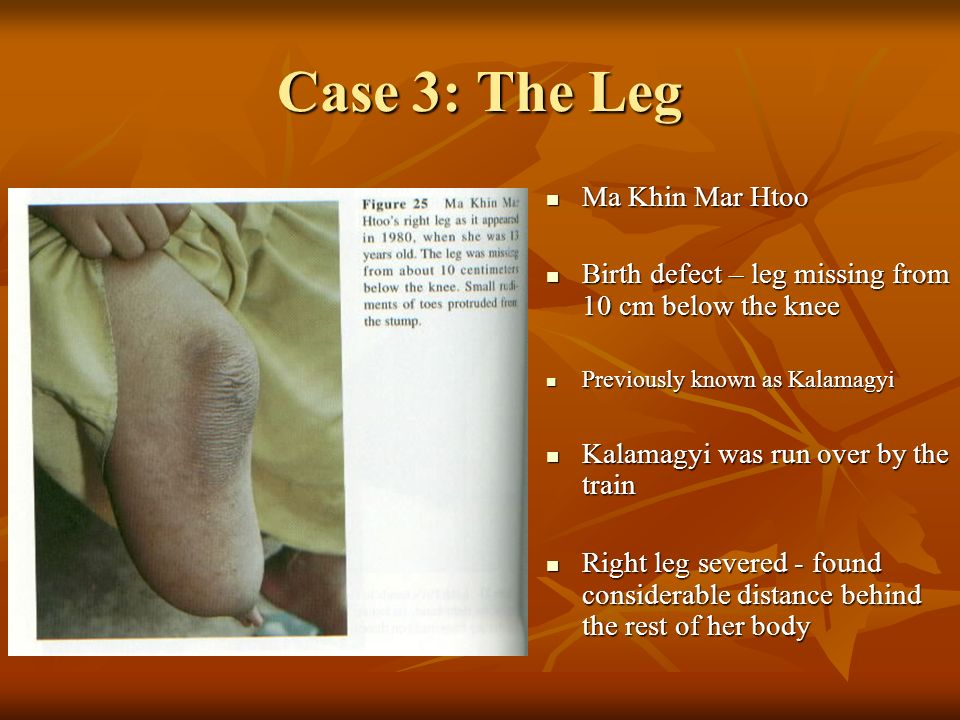 Case 3: The Leg Ma Khin Mar Htoo