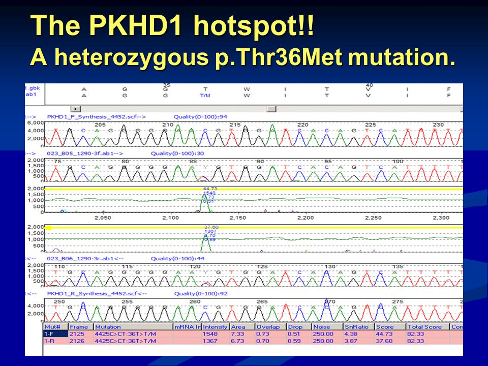 The PKHD1 hotspot!! A heterozygous p.Thr36Met mutation.