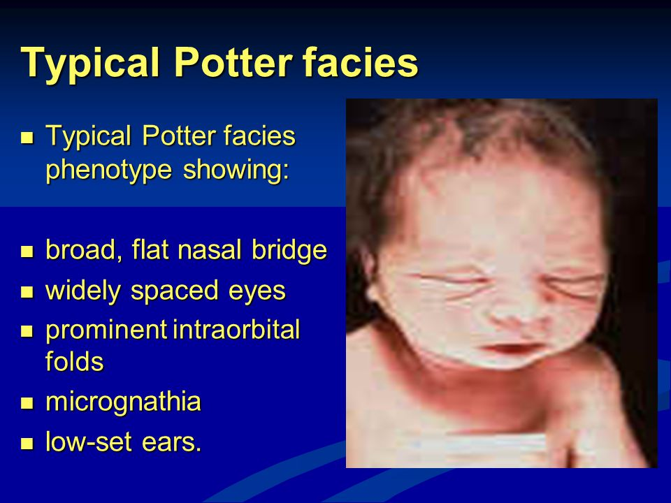 Typical Potter facies Typical Potter facies phenotype showing:
