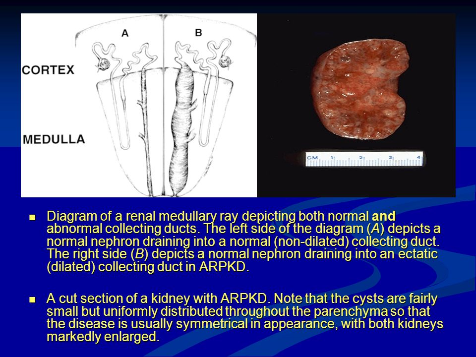 Diagram of a renal medullary ray depicting both normal and abnormal collecting ducts. The left side of the diagram (A) depicts a normal nephron draining into a normal (non-dilated) collecting duct. The right side (B) depicts a normal nephron draining into an ectatic (dilated) collecting duct in ARPKD.