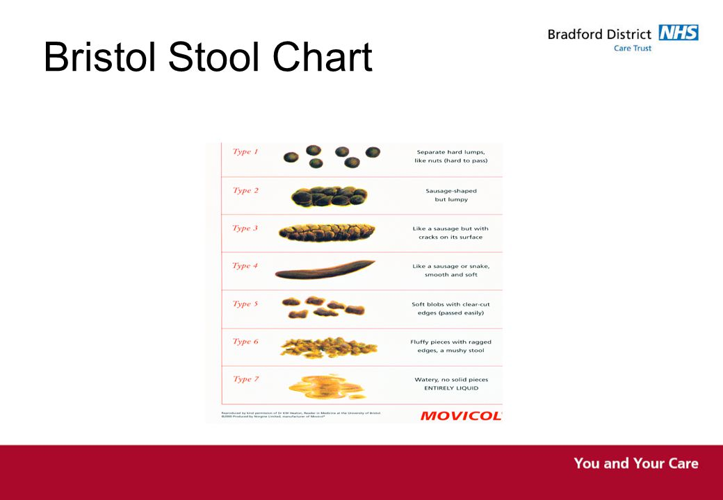 Bristol Stool Chart Bristol Stool chart useful tool when assessing bowels for both patient and nurse.
