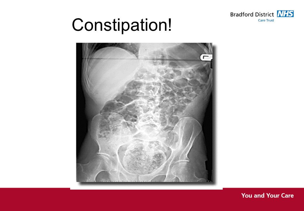 Constipation!