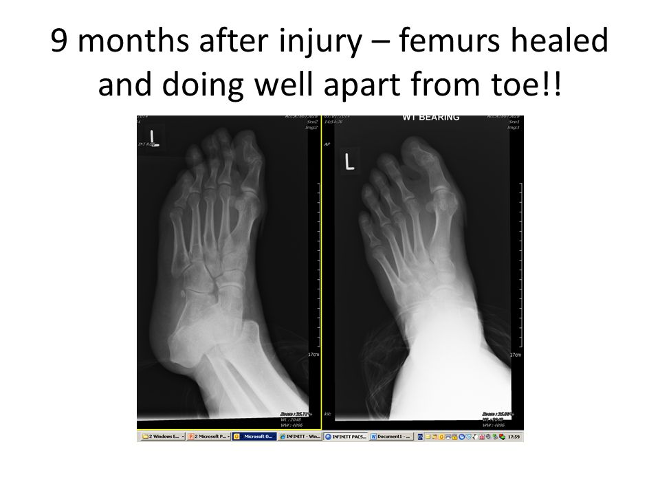 9 months after injury – femurs healed and doing well apart from toe!!
