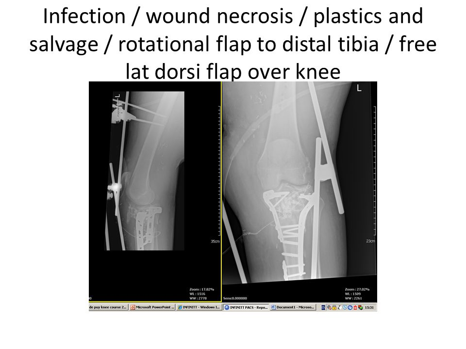 Infection / wound necrosis / plastics and salvage / rotational flap to distal tibia / free lat dorsi flap over knee