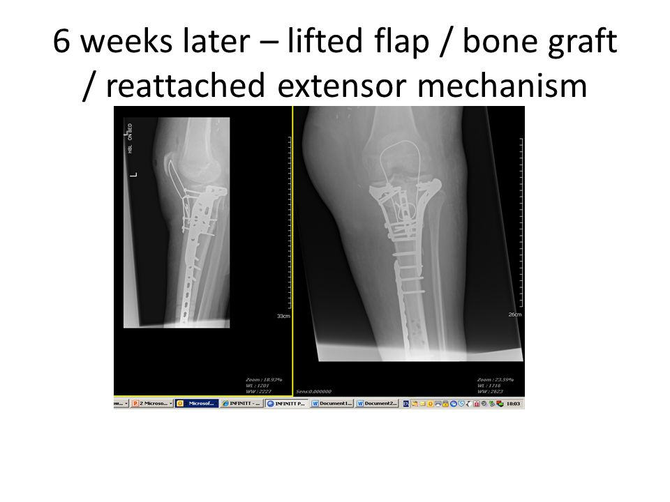 6 weeks later – lifted flap / bone graft / reattached extensor mechanism