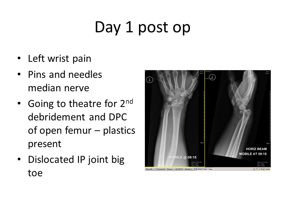 Day 1 post op Left wrist pain Pins and needles median nerve