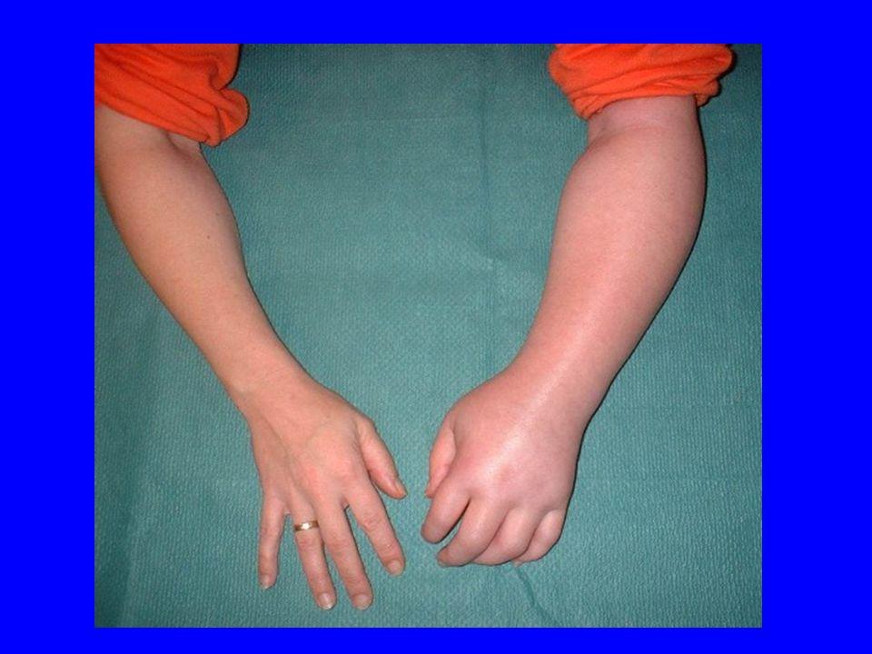 Sensory abnormalities and pain